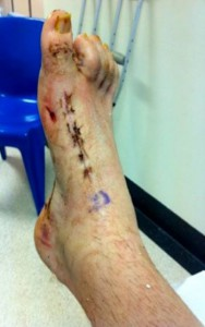Dylan's foot after surgery